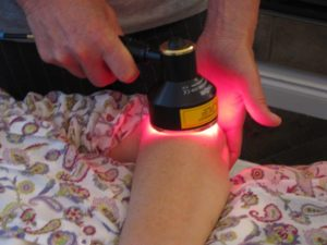 Laser treatment for arthritis.